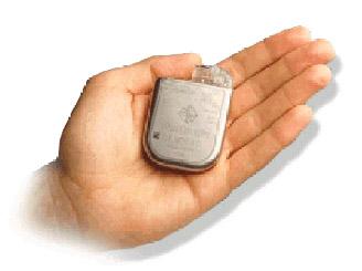 Implantabilní kardioverter-defibrilátor