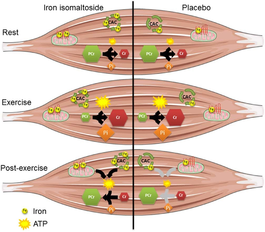 Mitochondrial Function, Skeletal Muscle Metabolism, and Iron Deficiency in Heart Failure
