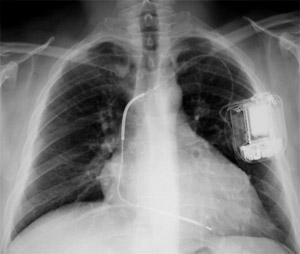 Umístění kardioverteru-defibrilátoru v levé podklíčkové oblasti