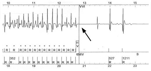 Přerušení závažné komorové tachykardie (vlevo) výbojem kardioverteru-defibrilátoru, na pravé straně obrázku je již přítomen normální rytmus