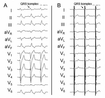 EKG před a po implantaci CRT